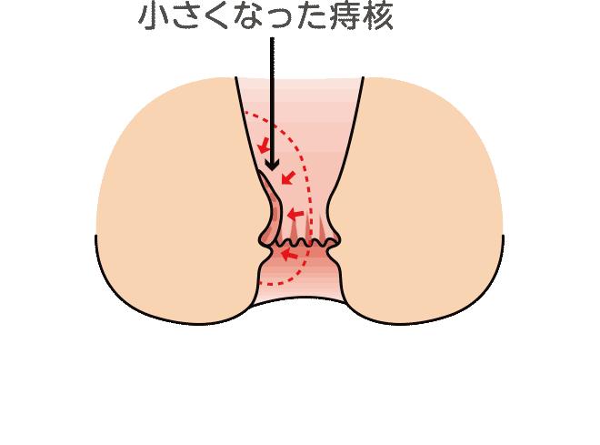 ji-after